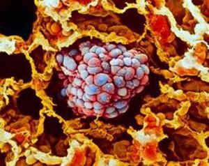 ВИЧ против рака