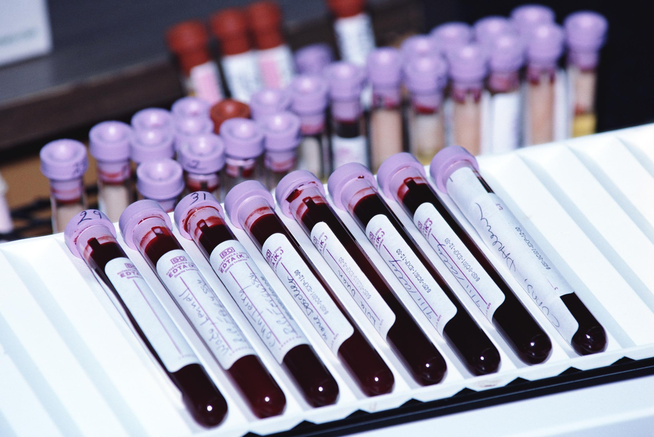 Следствие возобновляет дело по вопросу массового заражения СПИДом в 1988 году в Калмыкии