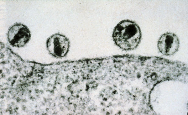 Стволовые клетки, измененные генетически, могут вылечить вирус иммунодефицита человека (ВИЧ)