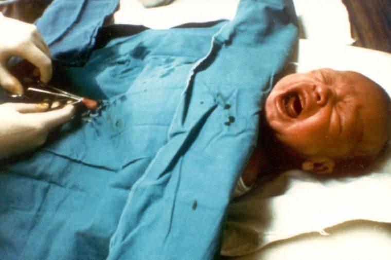Ученые предложили мужчинам обрезаться, дабы защититься от ВИЧ