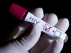 Пензенцев призывают бесплатно и анонимно сделать тест на ВИЧ