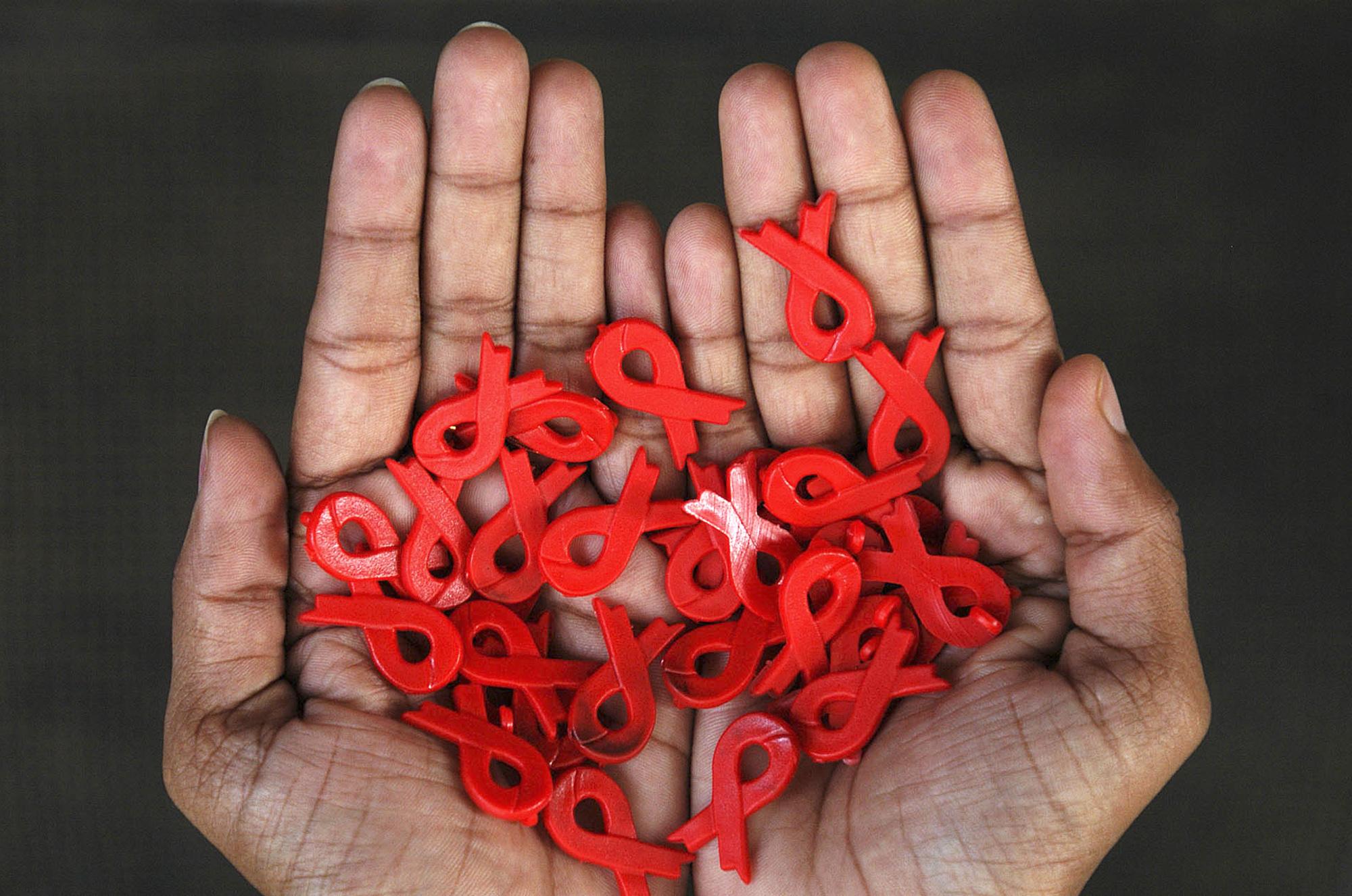 Обнаружена связь между антиретровирусной терапией ВИЧ-инфекции и риском развития инсульта