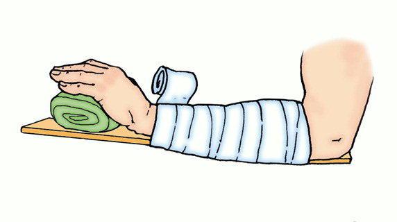 как надать первую помощь при растяжении сустава