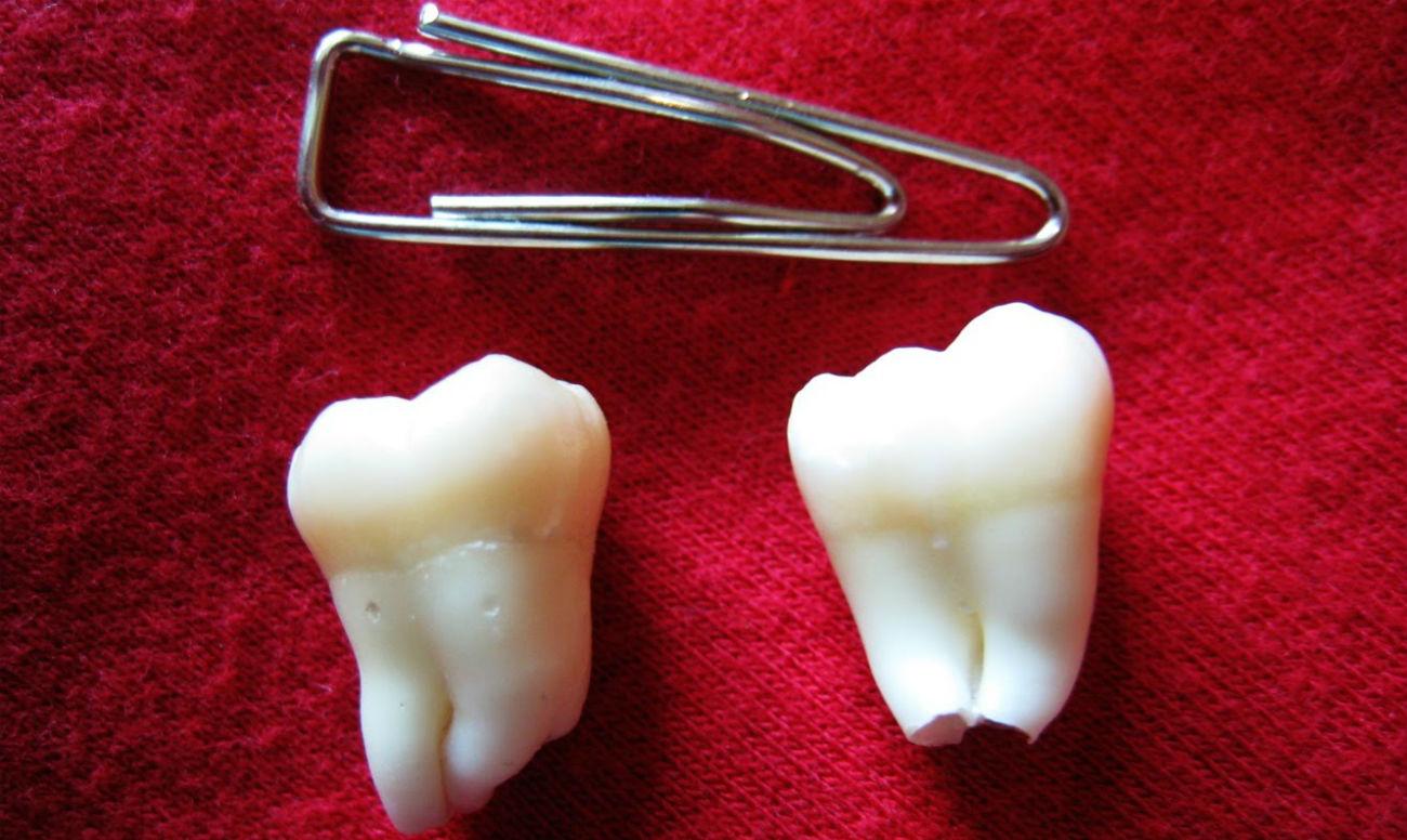 Молочный зуб вырвала остался корень что делать