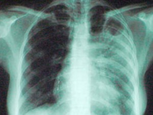 Туберкулез: найти и вылечить каждого