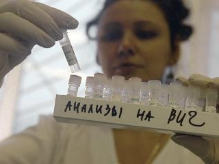 В Хакасии в 2,2 раза выросла заболеваемость ВИЧ
