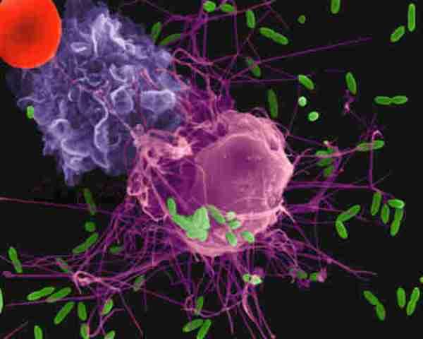 Реакция иммунитета на инфекцию — важная цель будущих терапий