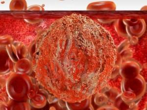 Ученые нашли молекулярный «консервный нож» против ВИЧ