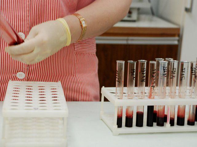 Новое мобильное приложение поможет диагностировать ВИЧ