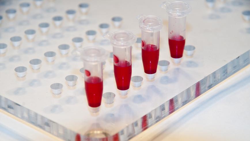Обнаружен новый вирус, передающийся через кровь
