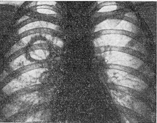 Когда и откуда взялся туберкулез
