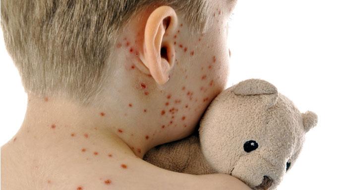 Пятая детская инфекция, о которой забывают даже врачи