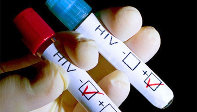 В аптеках Британии появились тесты на ВИЧ