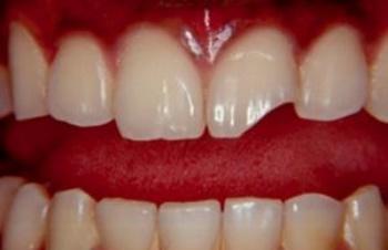 Наращивание зубов – просто, эффективно, недорого!