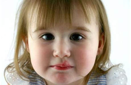 Герпес у детей: действенные меры профилактики