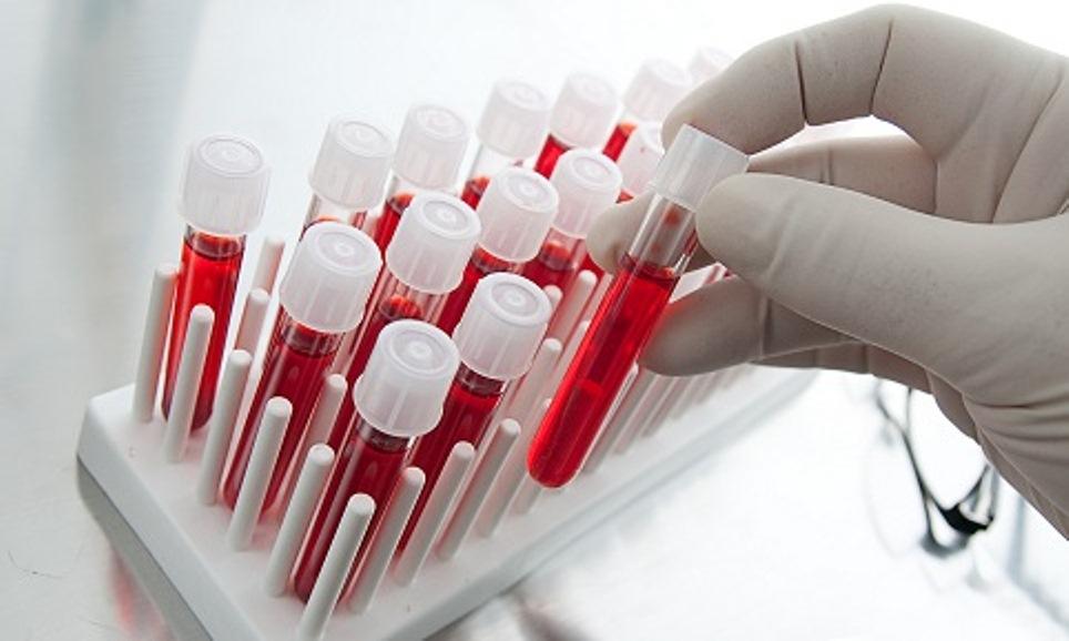 Создана вакцина, которая уничтожает вирус иммунодефицита среди обезьян