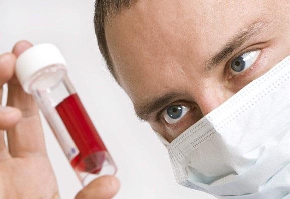 Передвижной пункт проверки на ВИЧ открылся в Новосибирске