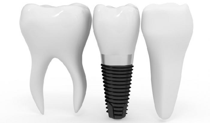 Имплантация зубов: методы и преимущества