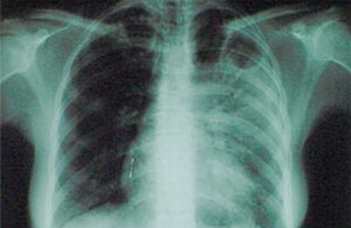Туберкулез появился 7 тысяч лет назад