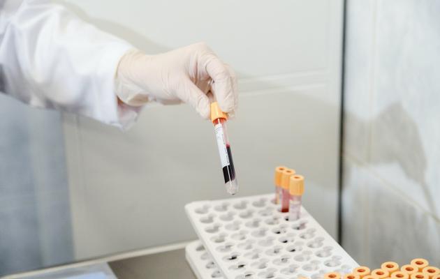 Более 6 тысяч забайкальцев инфицированы ВИЧ