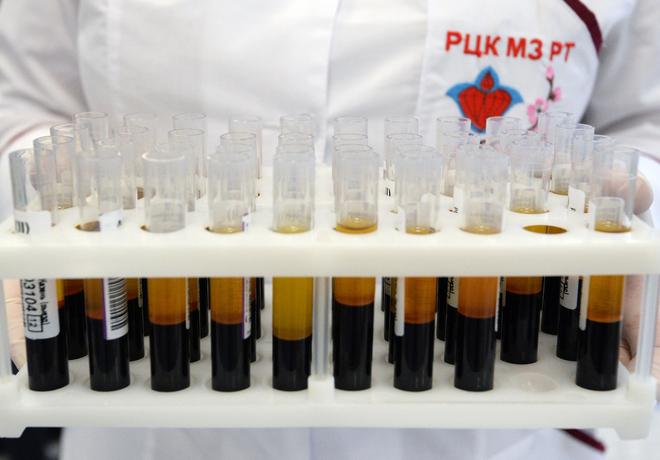 В Минздраве обсудят включение теста на ВИЧ в диспансеризацию