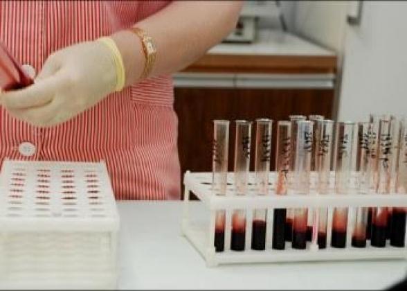 В Калуге выросло число ВИЧ-инфицированных