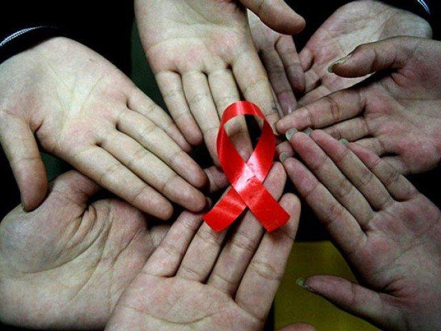 Оправдан ли страх заражения СПИДом
