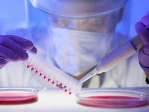 Роспотребнадзор рассказал, кто чаще всего болеет ВИЧ