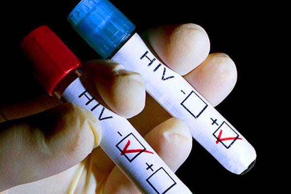 За месяц в Омской области зарегистрировано не менее 200 случаев ВИЧ-инфекции
