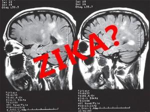 Вирус Зика, возможно, вызывает еще одно серьезное заболевание