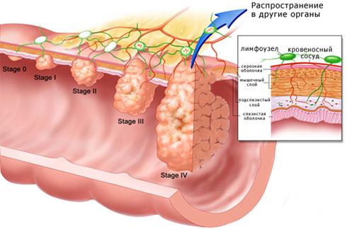 Рак желудка: этиология, симптомы и подходы к терапии