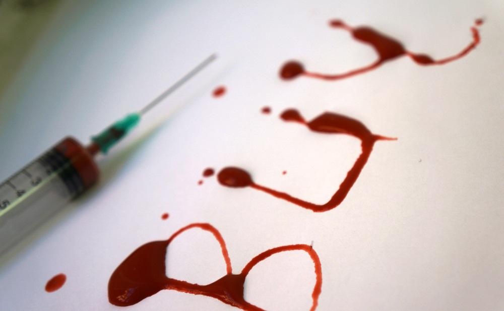 В Италии обнаружили белок, защищающий от ВИЧ