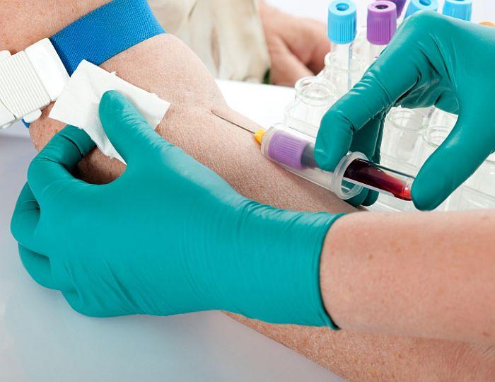 ВИЧ-инфицированных на Ставрополье становится больше