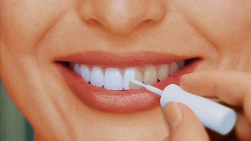 Противопоказания к отбеливанию зубов. Насколько оно безопасно?