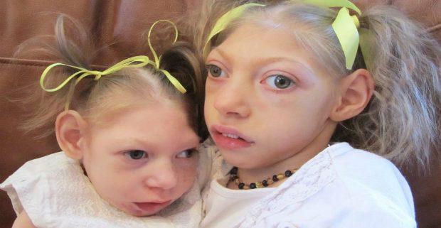 Начались испытания новой вакцины от Зика на людях