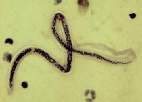 Риск ВИЧ-инфицирования повышается при заражении паразитическими червями W bancrofti
