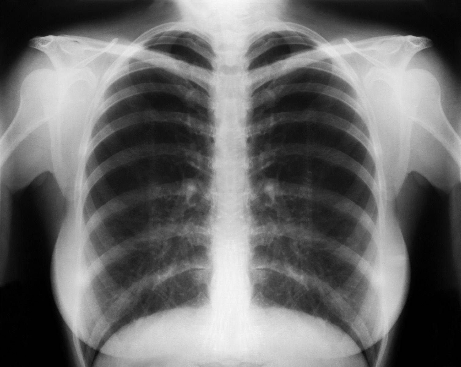 Машинное обучение упростит диагностику детской пневмонии
