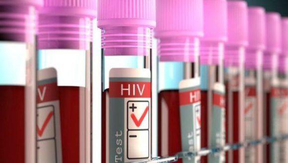 Британские медики заявили, что они могут вылечить СПИД
