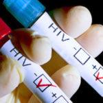 Учeные проследили процесс зарождения вируса ВИЧ