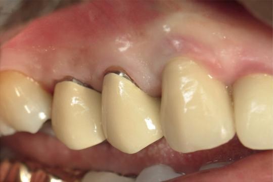 Особенности работы стоматологов с ВИЧ-инфицированными