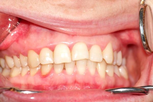 Неправильный прикус зубов у человека