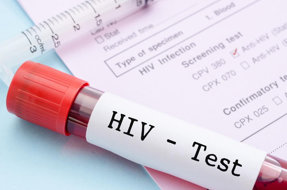 Группа риска: в девяти регионах России число зараженных ВИЧ превысило 1%