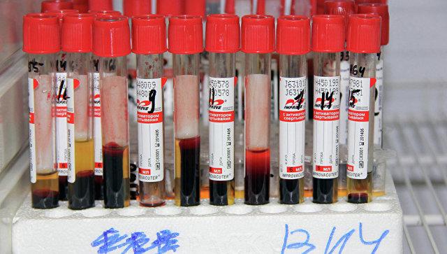 ВИЧ стал самой смертоносной инфекцией в России, сообщил эксперт