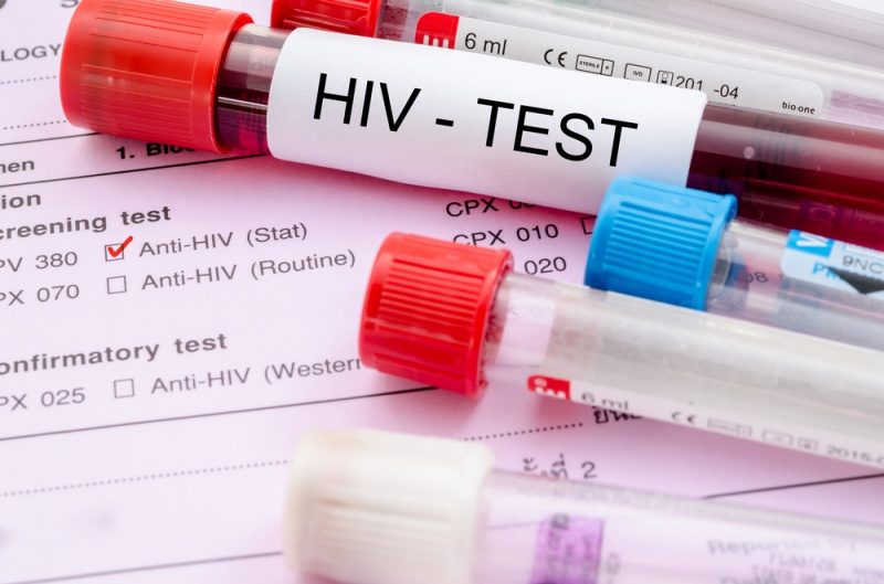 ВИЧ-инфекция (в том числе и контролируемая) является независимым фактором риска развития инфаркта миокарда