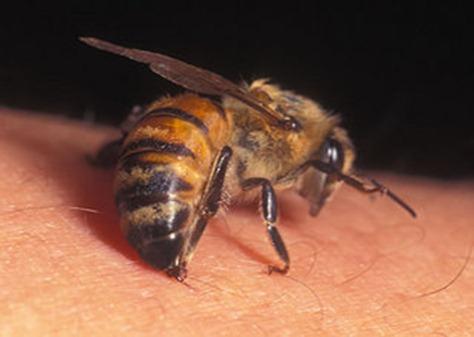 Пчелиный яд способен убить ВИЧ инфекцию