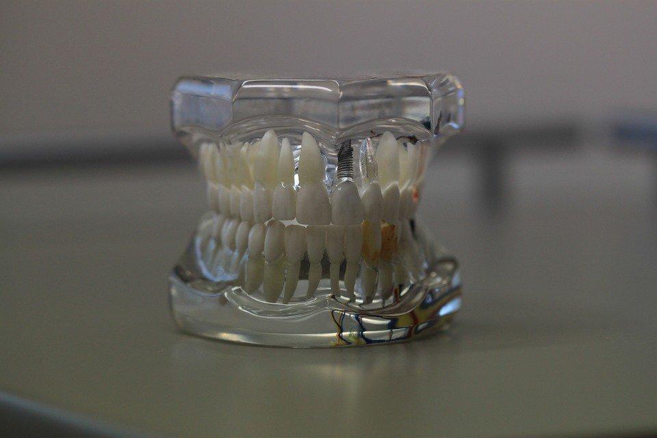 Съемный зубной протез нового поколения