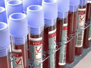 Биологи проследили раннюю историю ВИЧ в США