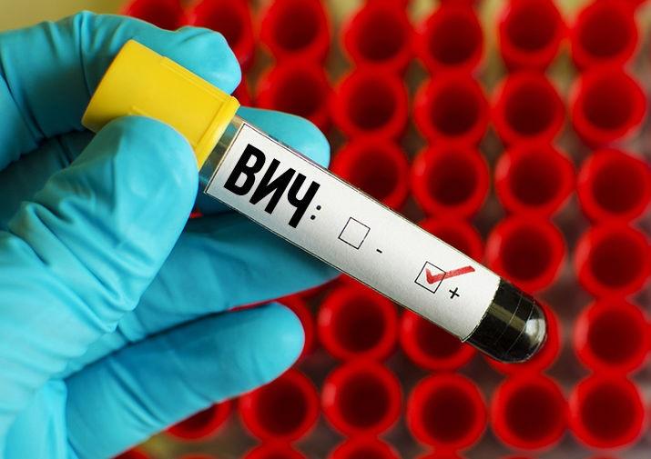 Тест: коварные симптомы ВИЧ