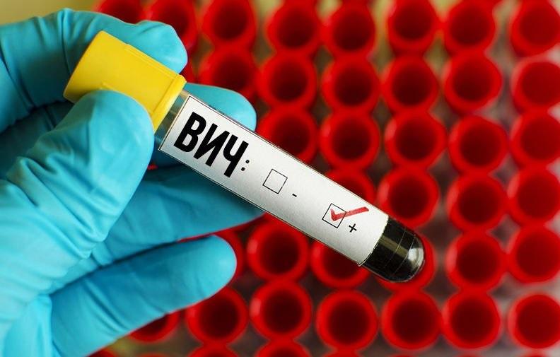 Испанские ученые придумали, как не допустить ВИЧ в иммунную систему человека