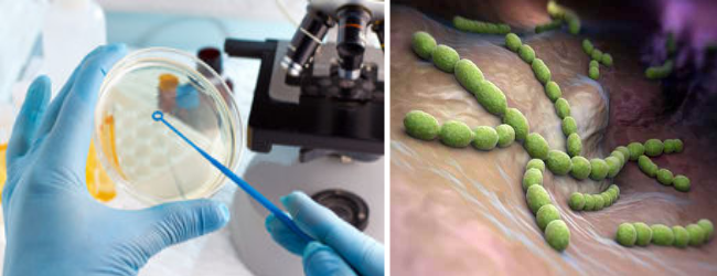 посев на хламидию трахоматис с чувствительностью к антибиотикам